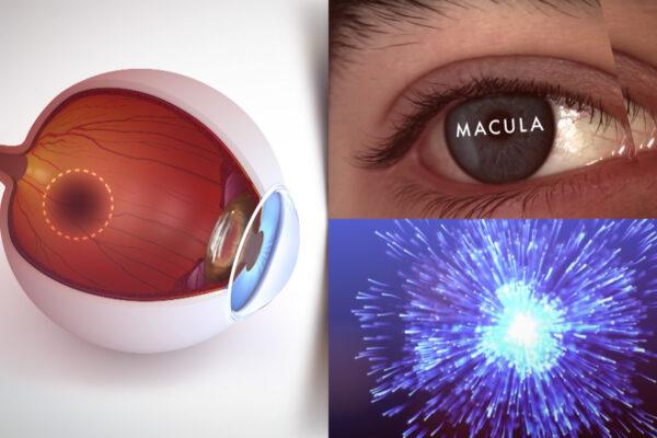 Superfoods Macula Example ©Holey&Moley Ltd