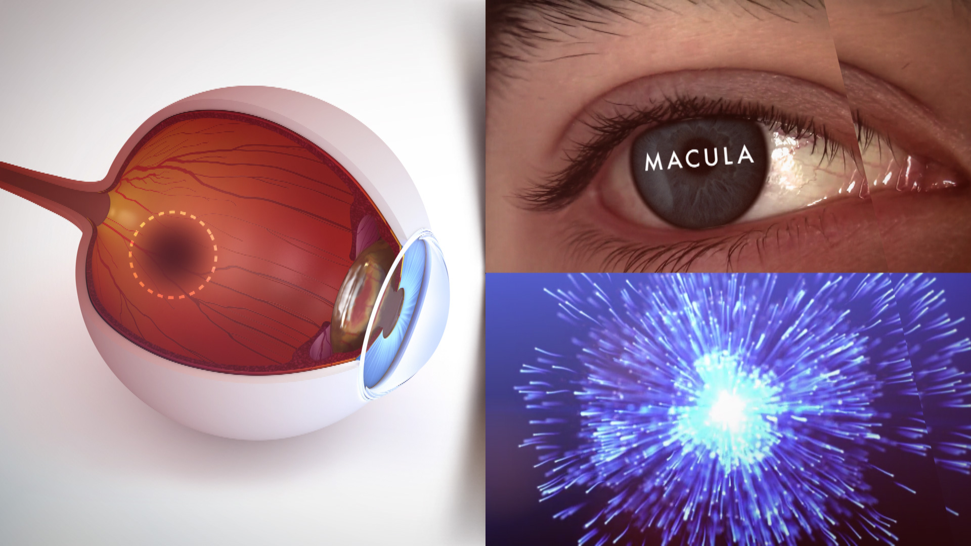 Superfoods Macula Example ©Holey&Moley Ltd